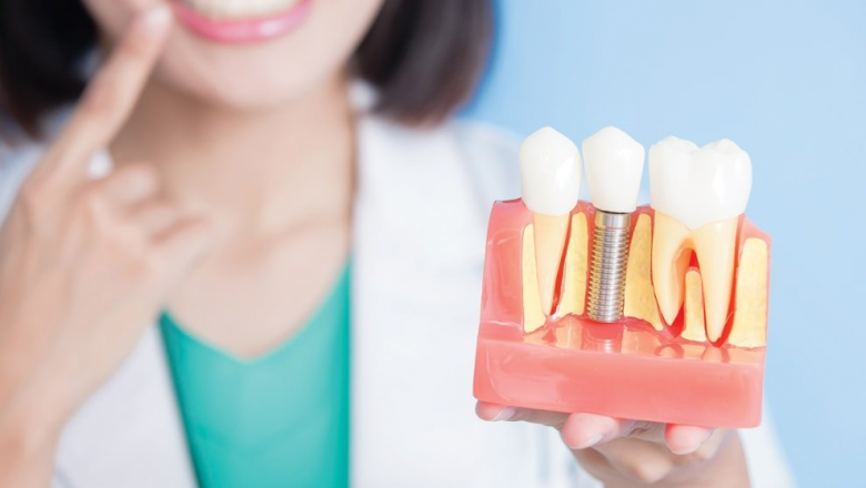 Factors to Consider for Choosing the Best Dental Implant Clinic