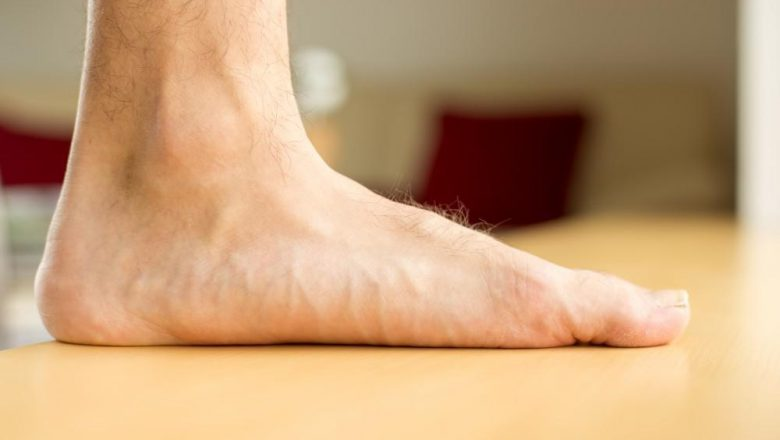 Does the Shape of Your Feet Make Your More or Less Prone to Injury?