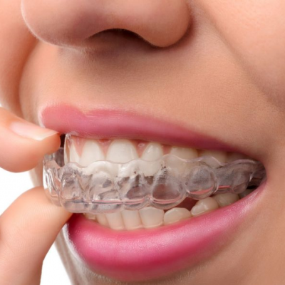 Brace Yourself: a Guide to Having Straighter Teeth